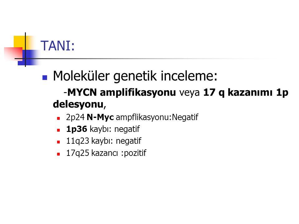 TANI: Moleküler genetik inceleme: -MYCN amplifikasyonu veya 17 q kazanımı 1p delesyonu, 2p24 N-Myc ampflikasyonu:Negatif 1p36 kaybı: negatif 11q23 kay