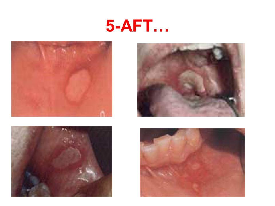 5-AFT…