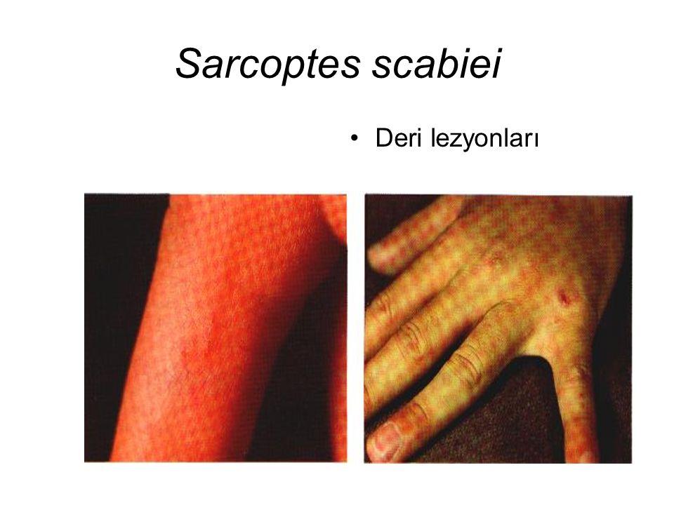 Sarcoptes scabiei Deri lezyonları
