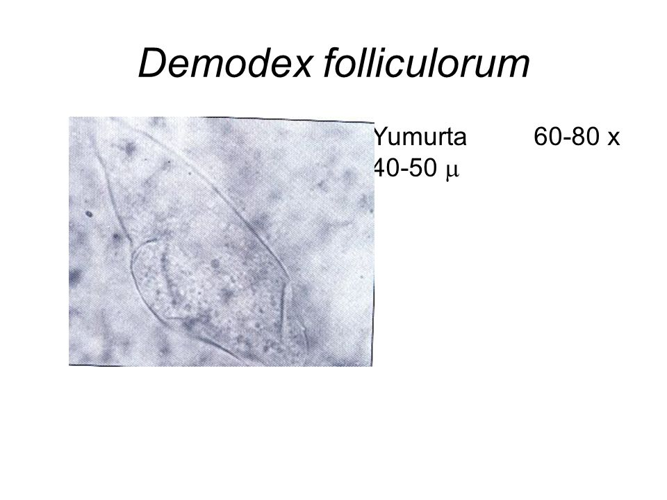 Demodex folliculorum Yumurta 60-80 x 40-50 