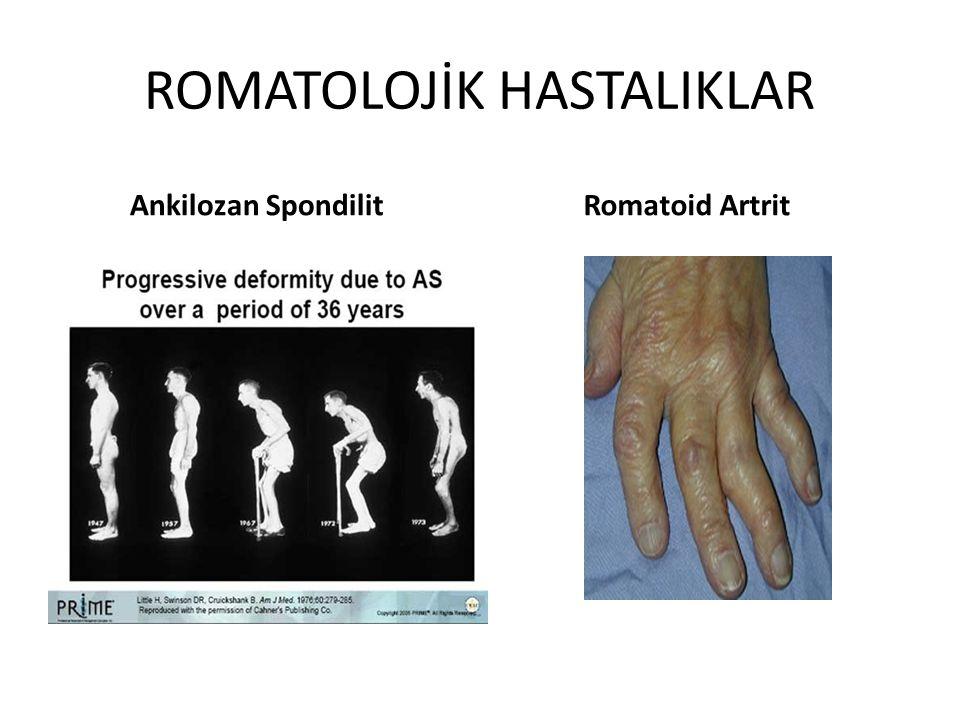 ROMATOLOJİK HASTALIKLAR Ankilozan Spondilit Romatoid Artrit