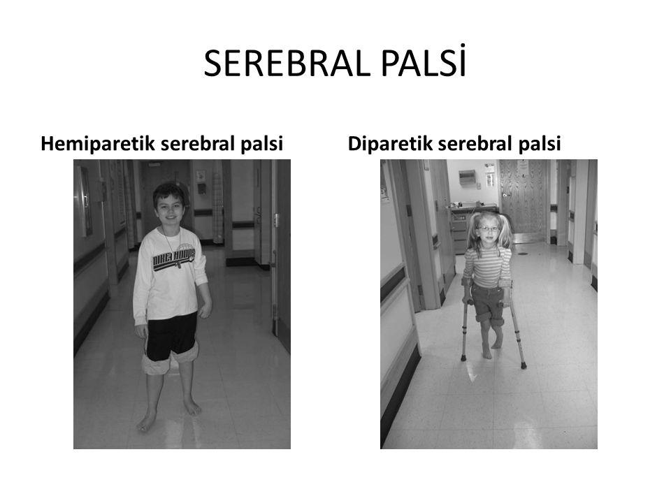 SEREBRAL PALSİ Hemiparetik serebral palsiDiparetik serebral palsi