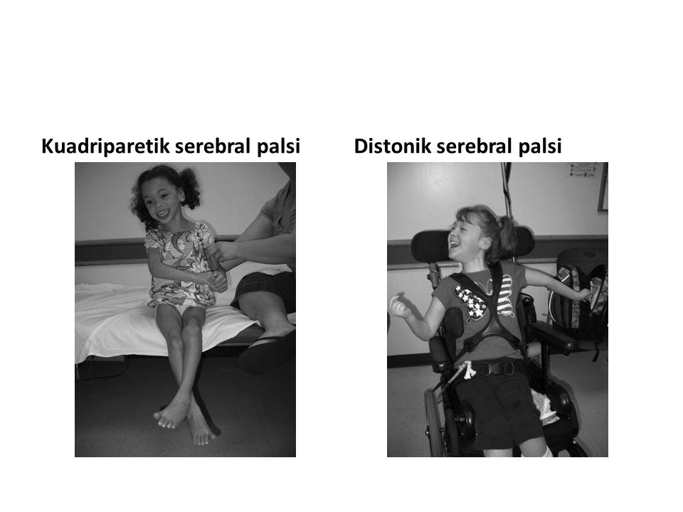 Kuadriparetik serebral palsiDistonik serebral palsi
