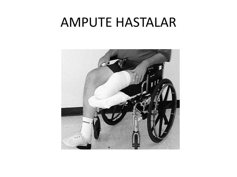 AMPUTE HASTALAR
