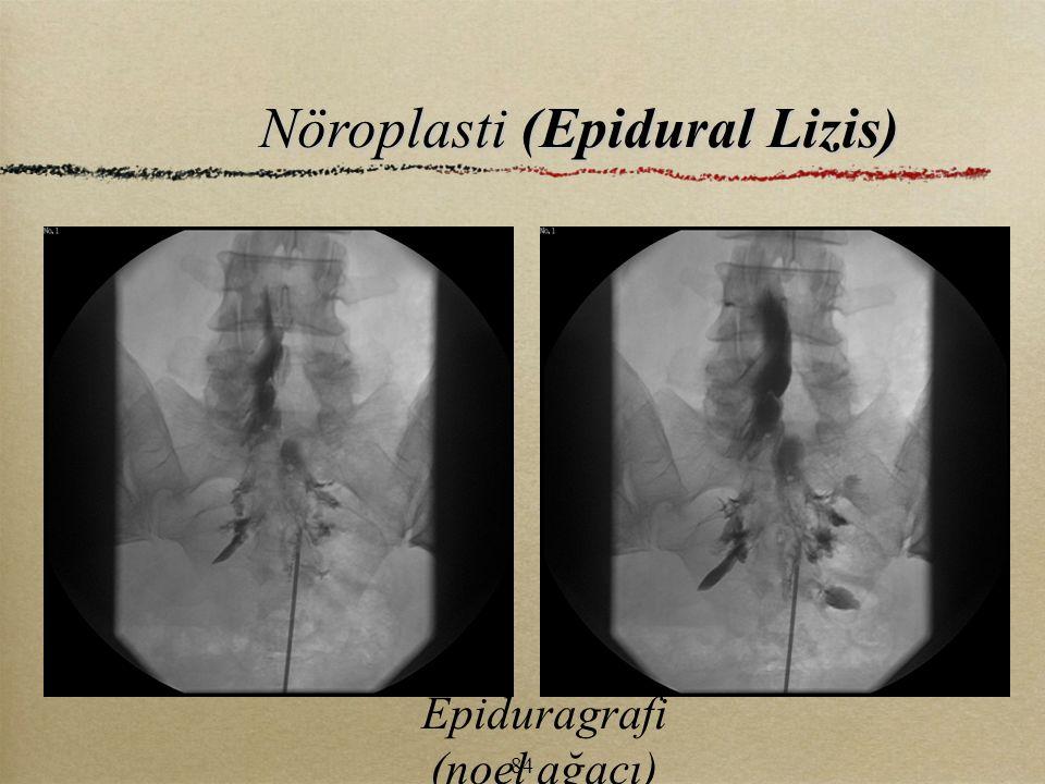 Nöroplasti (Epidural Lizis) Epiduragrafi (noel ağacı) 84