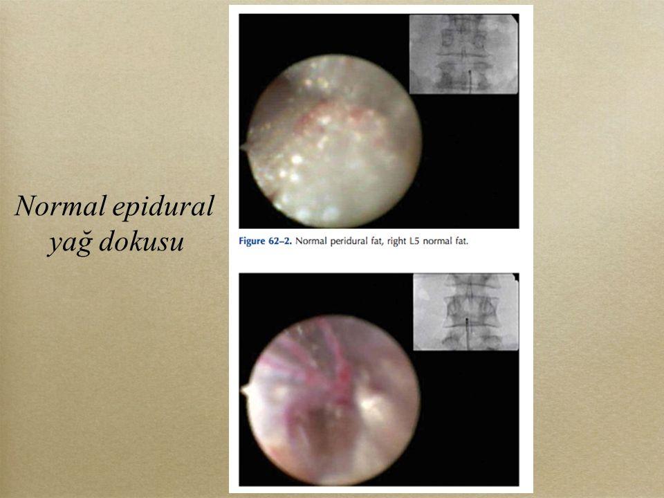 Normal epidural yağ dokusu