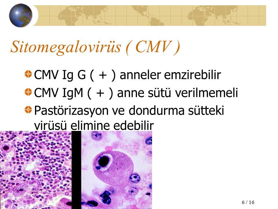 Sitomegalovirüs ( CMV ) CMV Ig G ( + ) anneler emzirebilir CMV IgM ( + ) anne sütü verilmemeli Pastörizasyon ve dondurma sütteki virüsü elimine edebilir 6 / 16