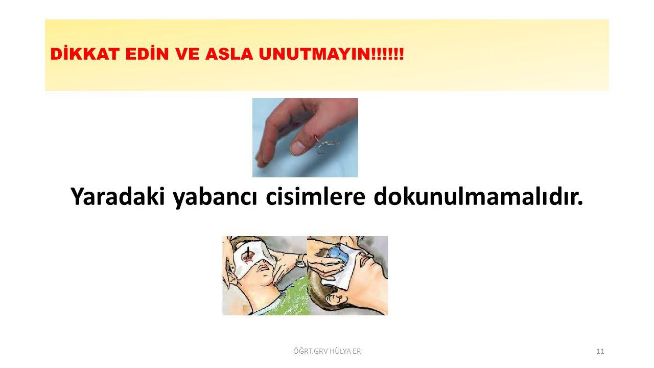 DİKKAT EDİN VE ASLA UNUTMAYIN!!!!!! Yaradaki yabancı cisimlere dokunulmamalıdır. ÖĞRT.GRV HÜLYA ER11