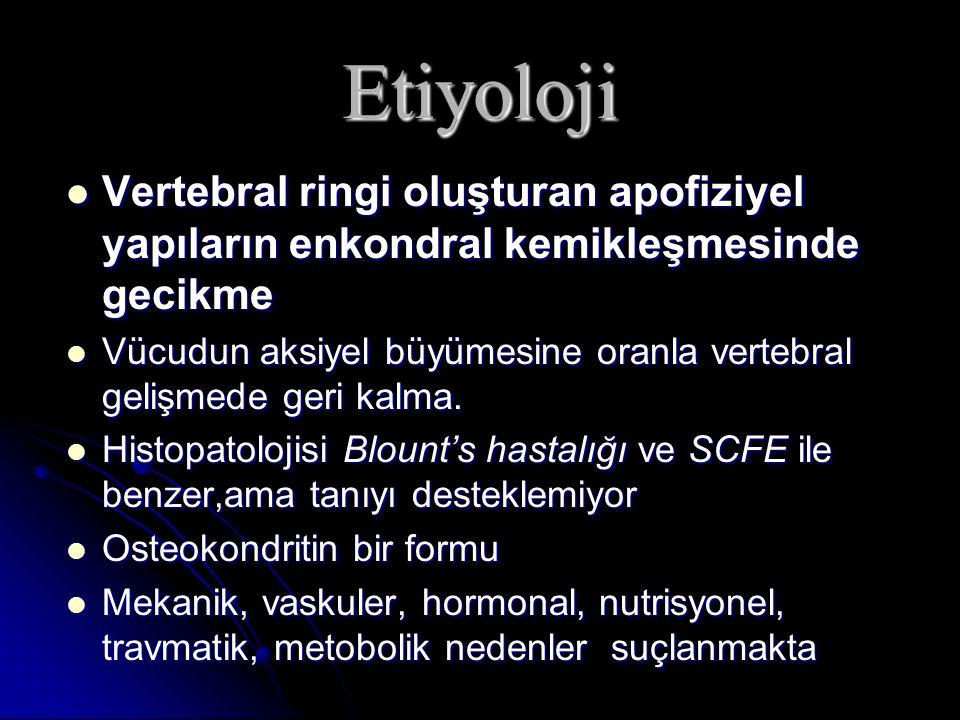 Etiyoloji Vertebral ringi oluşturan apofiziyel yapıların enkondral kemikleşmesinde gecikme Vertebral ringi oluşturan apofiziyel yapıların enkondral ke