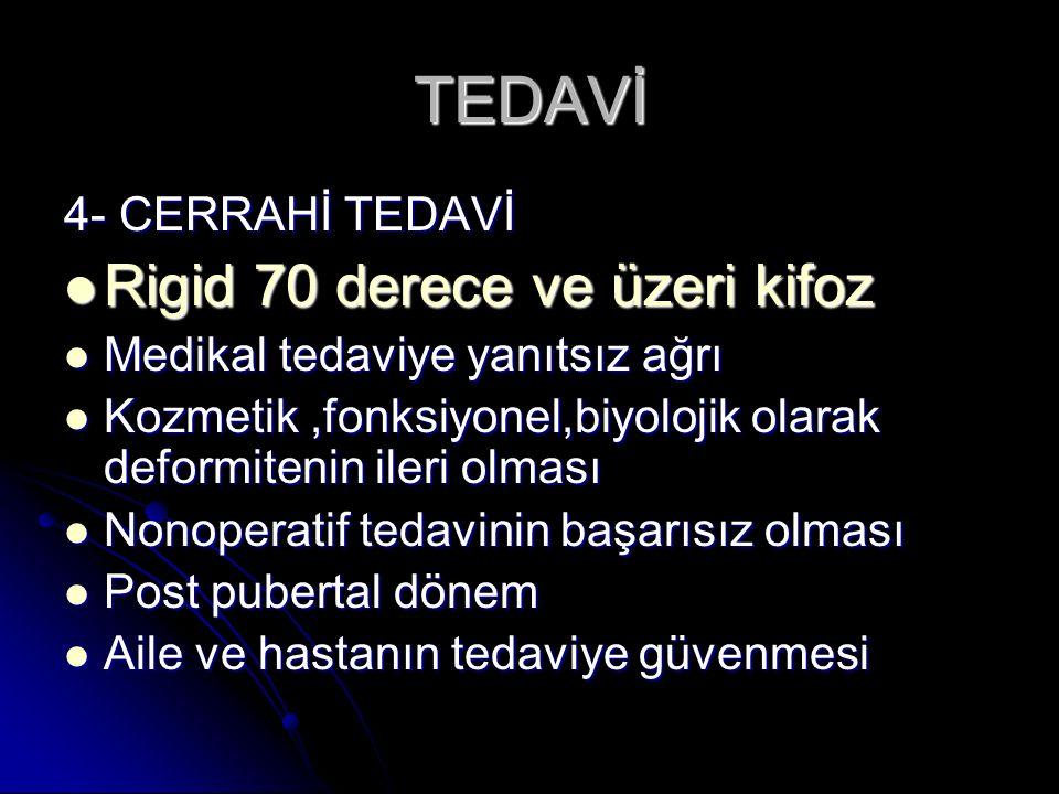 TEDAVİ 4- CERRAHİ TEDAVİ Rigid 70 derece ve üzeri kifoz Rigid 70 derece ve üzeri kifoz Medikal tedaviye yanıtsız ağrı Medikal tedaviye yanıtsız ağrı K