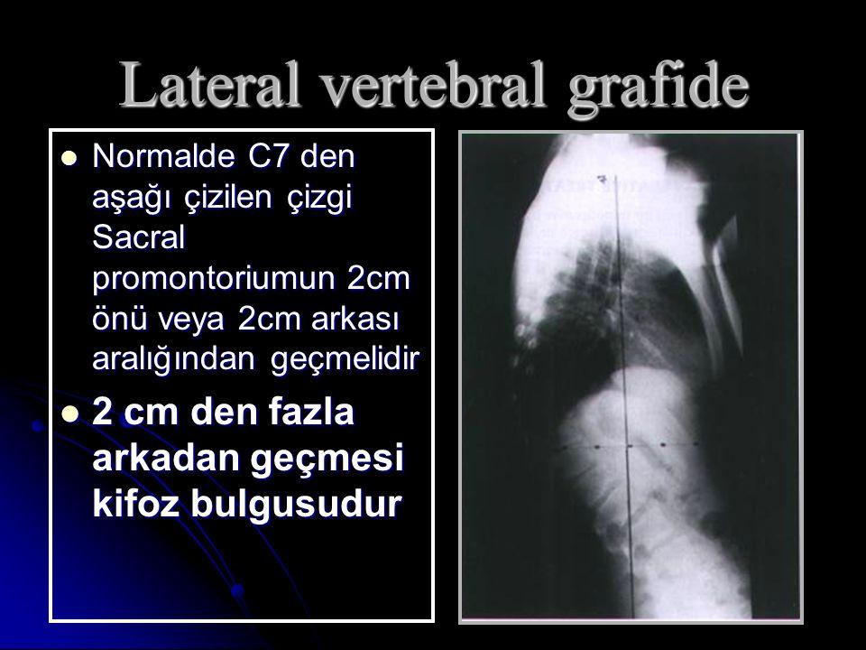 Lateral vertebral grafide Normalde C7 den aşağı çizilen çizgi Sacral promontoriumun 2cm önü veya 2cm arkası aralığından geçmelidir Normalde C7 den aşağı çizilen çizgi Sacral promontoriumun 2cm önü veya 2cm arkası aralığından geçmelidir 2 cm den fazla arkadan geçmesi kifoz bulgusudur 2 cm den fazla arkadan geçmesi kifoz bulgusudur