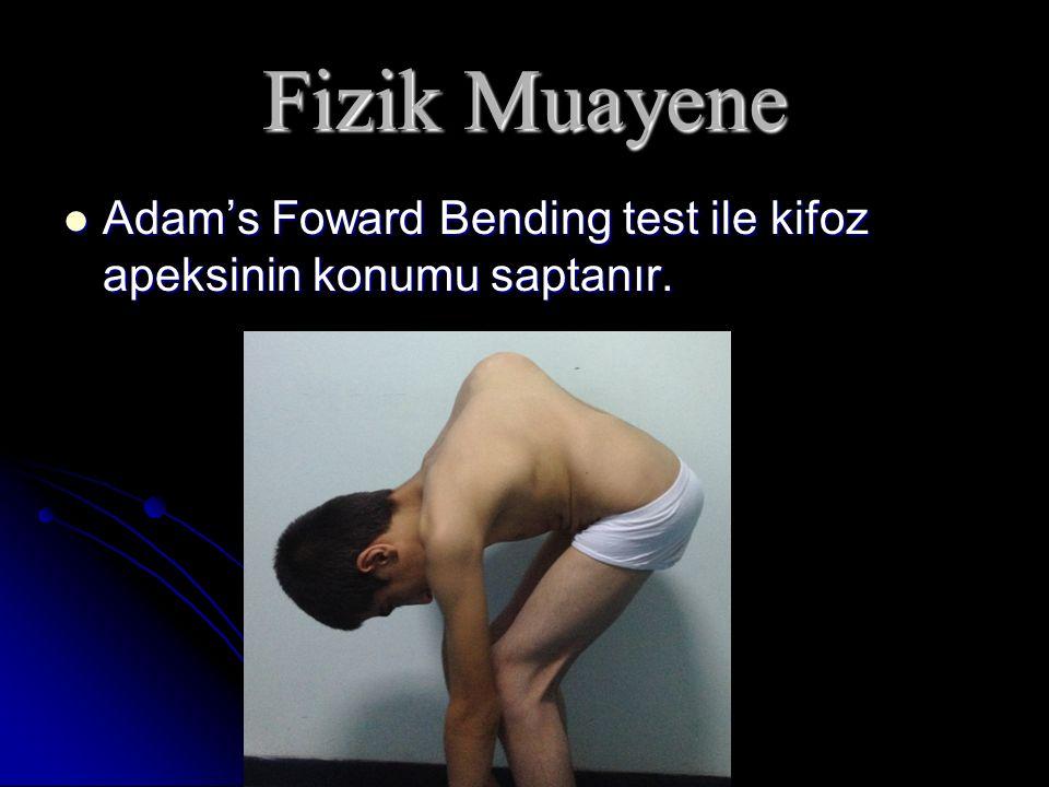 Fizik Muayene Adam's Foward Bending test ile kifoz apeksinin konumu saptanır. Adam's Foward Bending test ile kifoz apeksinin konumu saptanır.