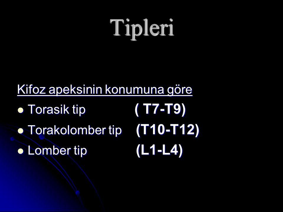 Tipleri Kifoz apeksinin konumuna göre Torasik tip ( T7-T9) Torasik tip ( T7-T9) Torakolomber tip (T10-T12) Torakolomber tip (T10-T12) Lomber tip (L1-L