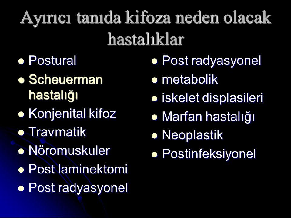 Postural Postural Scheuerman hastalığı Scheuerman hastalığı Konjenital kifoz Konjenital kifoz Travmatik Travmatik Nöromuskuler Nöromuskuler Post lamin