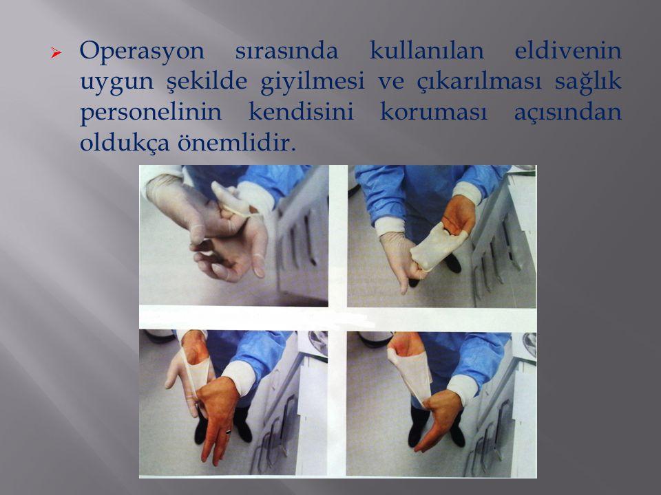  Operasyon sırasında kullanılan eldivenin uygun şekilde giyilmesi ve çıkarılması sağlık personelinin kendisini koruması açısından oldukça önemlidir.