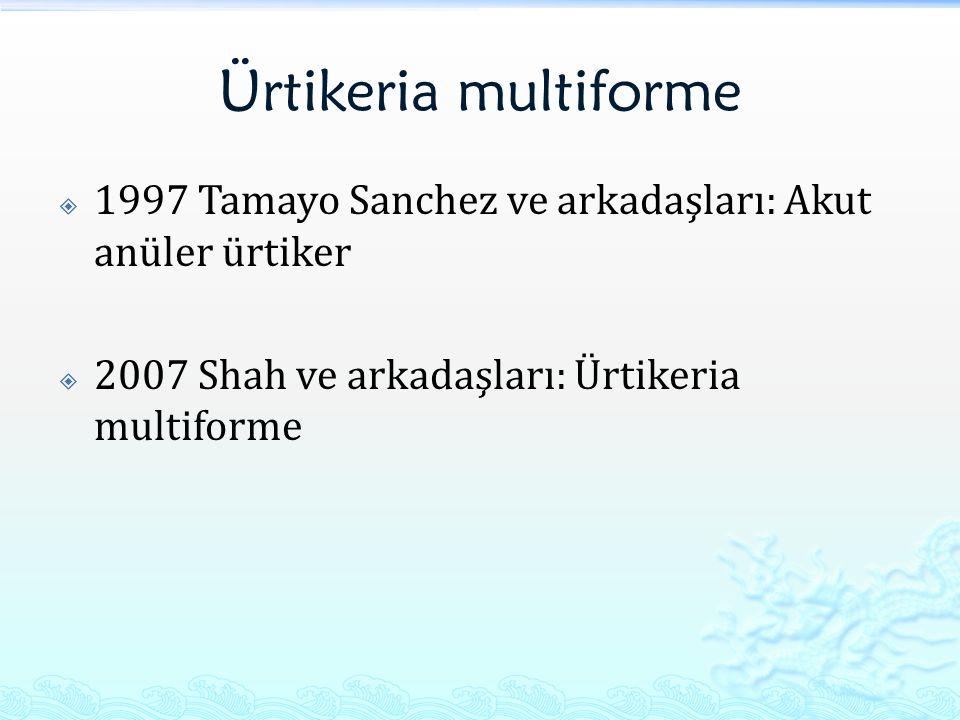 Ürtikeria multiforme  1997 Tamayo Sanchez ve arkadaşları: Akut anüler ürtiker  2007 Shah ve arkadaşları: Ürtikeria multiforme
