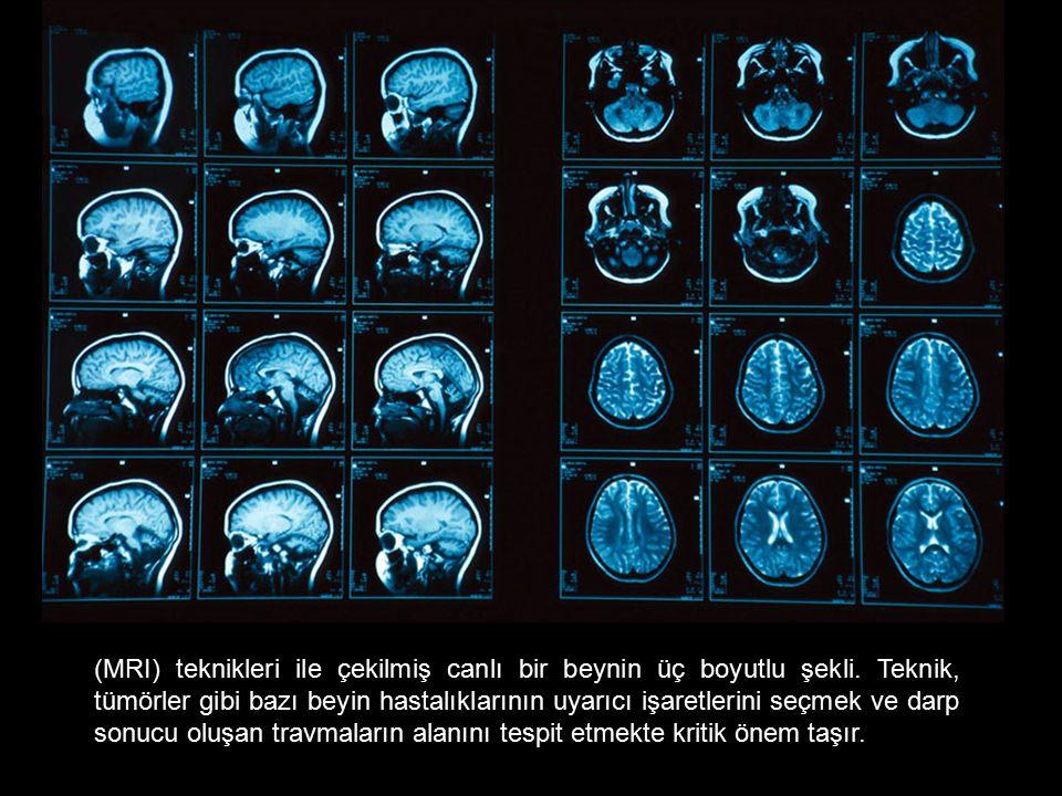 (MRI) teknikleri ile çekilmiş canlı bir beynin üç boyutlu şekli. Teknik, tümörler gibi bazı beyin hastalıklarının uyarıcı işaretlerini seçmek ve darp