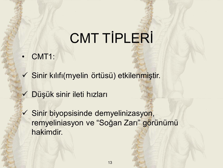 13 CMT1: Sinir kılıfı(myelin örtüsü) etkilenmiştir.