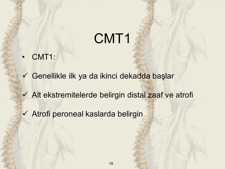 18 CMT1: Genellikle ilk ya da ikinci dekadda başlar Alt ekstremitelerde belirgin distal zaaf ve atrofi Atrofi peroneal kaslarda belirgin CMT1