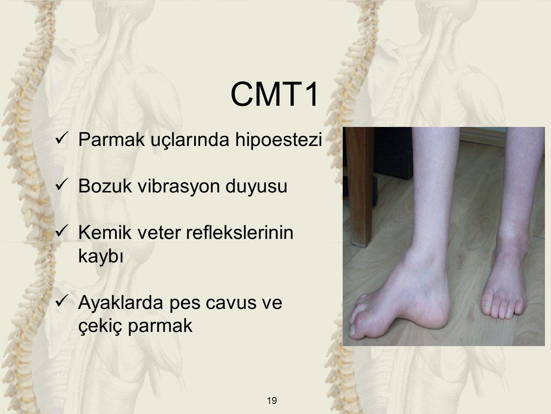 19 Parmak uçlarında hipoestezi Bozuk vibrasyon duyusu Kemik veter reflekslerinin kaybı Ayaklarda pes cavus ve çekiç parmak CMT1