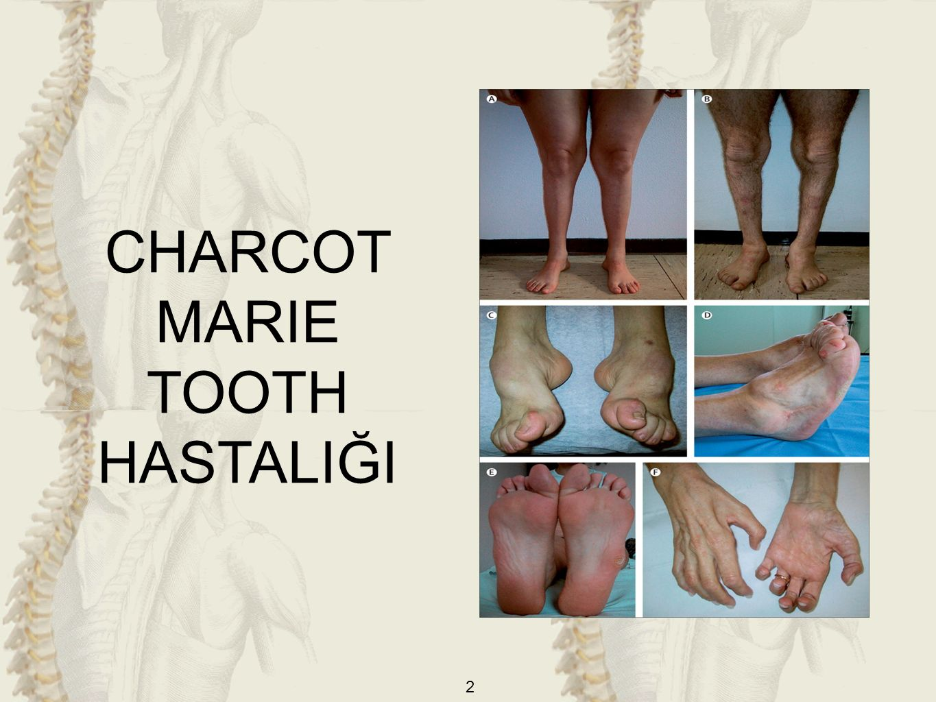 2 CHARCOT MARIE TOOTH HASTALIĞI
