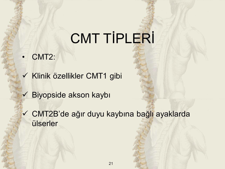 21 CMT2: Klinik özellikler CMT1 gibi Biyopside akson kaybı CMT2B'de ağır duyu kaybına bağlı ayaklarda ülserler CMT TİPLERİ