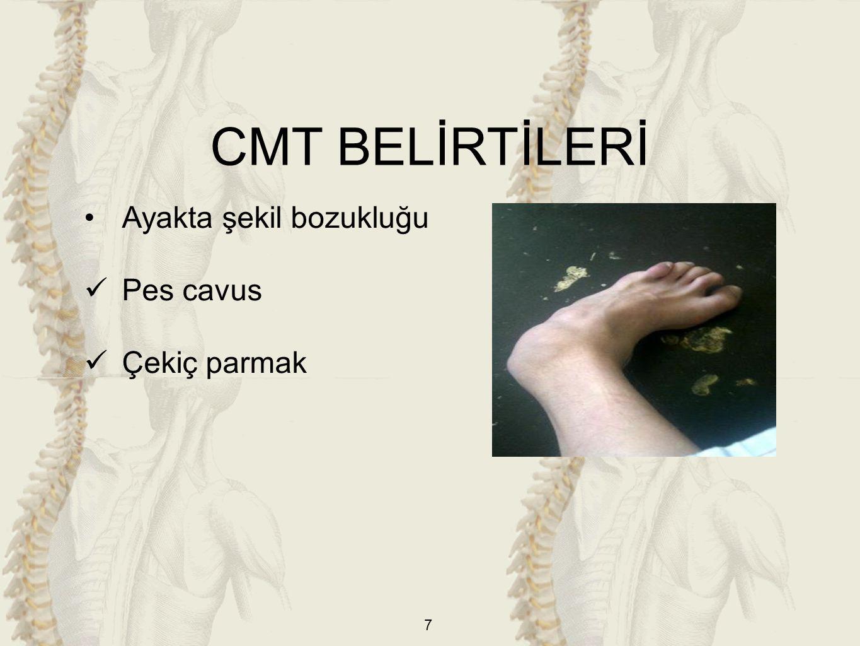 7 Ayakta şekil bozukluğu Pes cavus Çekiç parmak CMT BELİRTİLERİ