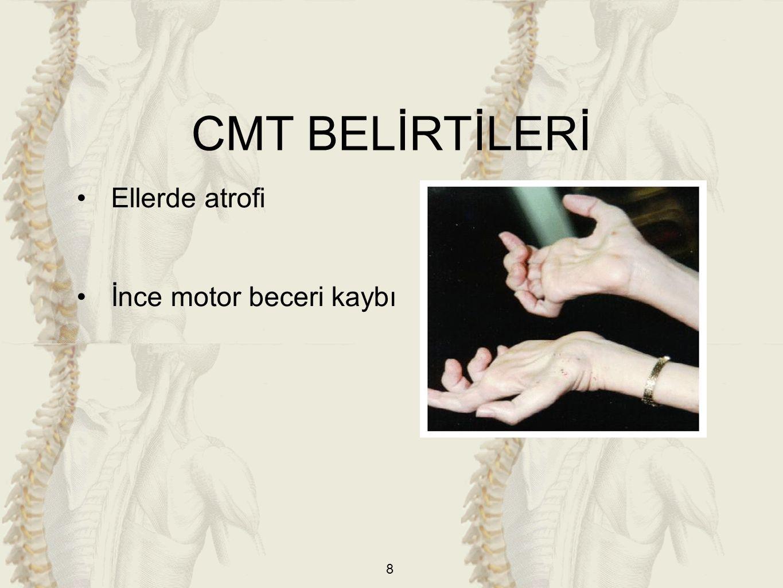 8 Ellerde atrofi İnce motor beceri kaybı CMT BELİRTİLERİ