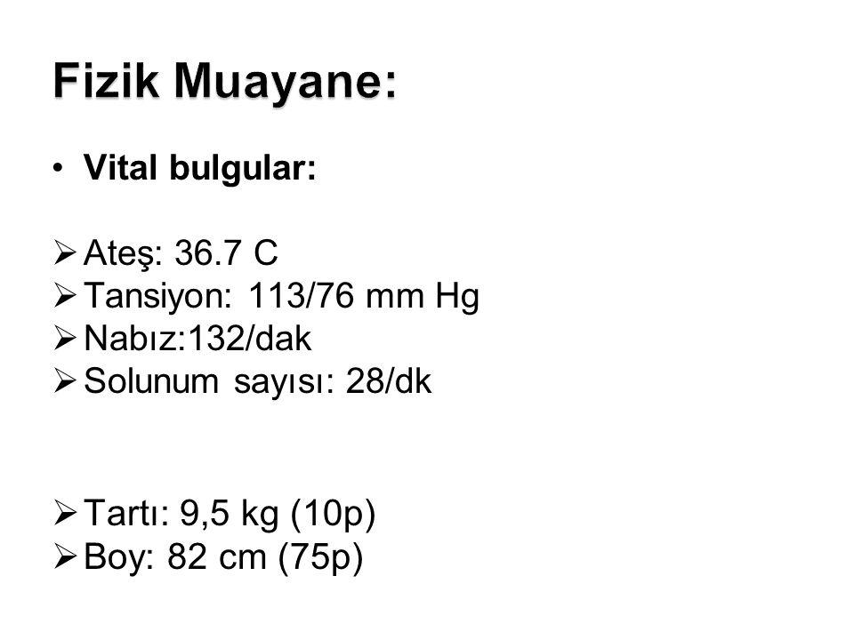 Vital bulgular:  Ateş: 36.7 C  Tansiyon: 113/76 mm Hg  Nabız:132/dak  Solunum sayısı: 28/dk  Tartı: 9,5 kg (10p)  Boy: 82 cm (75p)