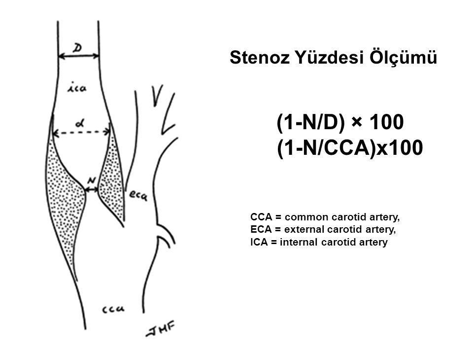 Stenoz Yüzdesi Ölçümü (1-N/D) × 100 (1-N/CCA)x100 CCA = common carotid artery, ECA = external carotid artery, ICA = internal carotid artery