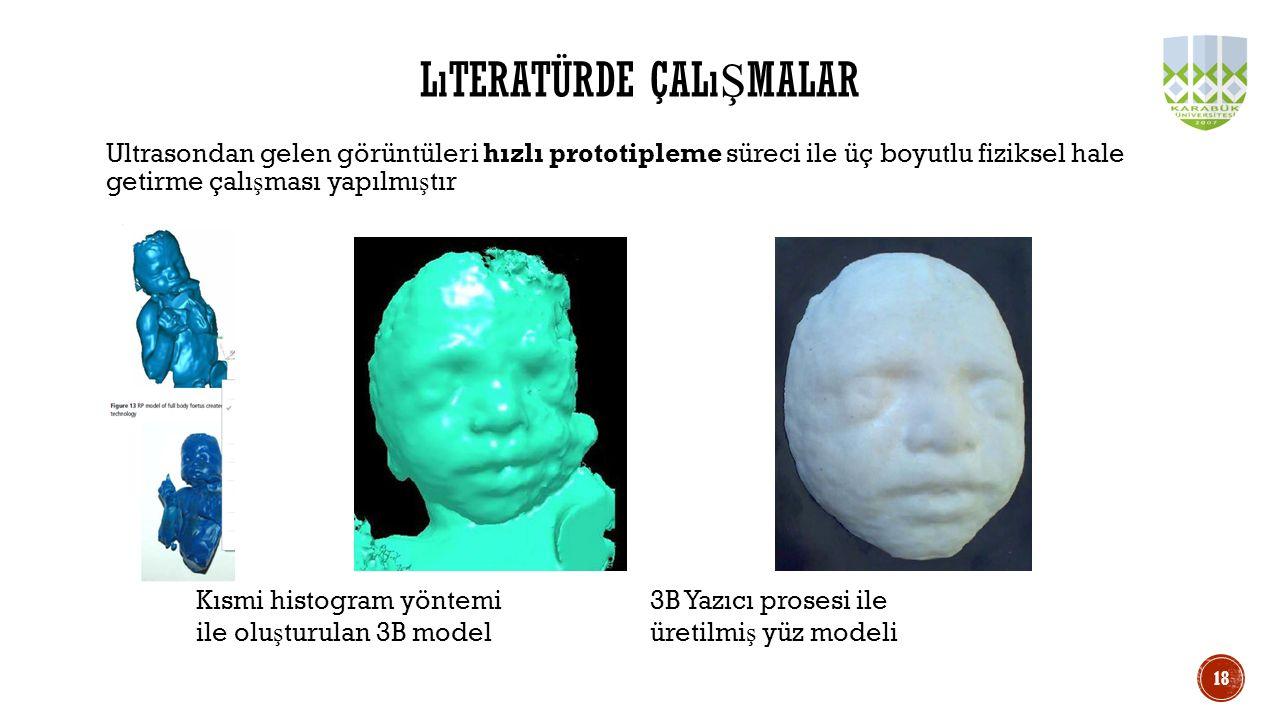 Ultrasondan gelen görüntüleri hızlı prototipleme süreci ile üç boyutlu fiziksel hale getirme çalı ş ması yapılmı ş tır LıTERATÜRDE ÇALı Ş MALAR Kısmi
