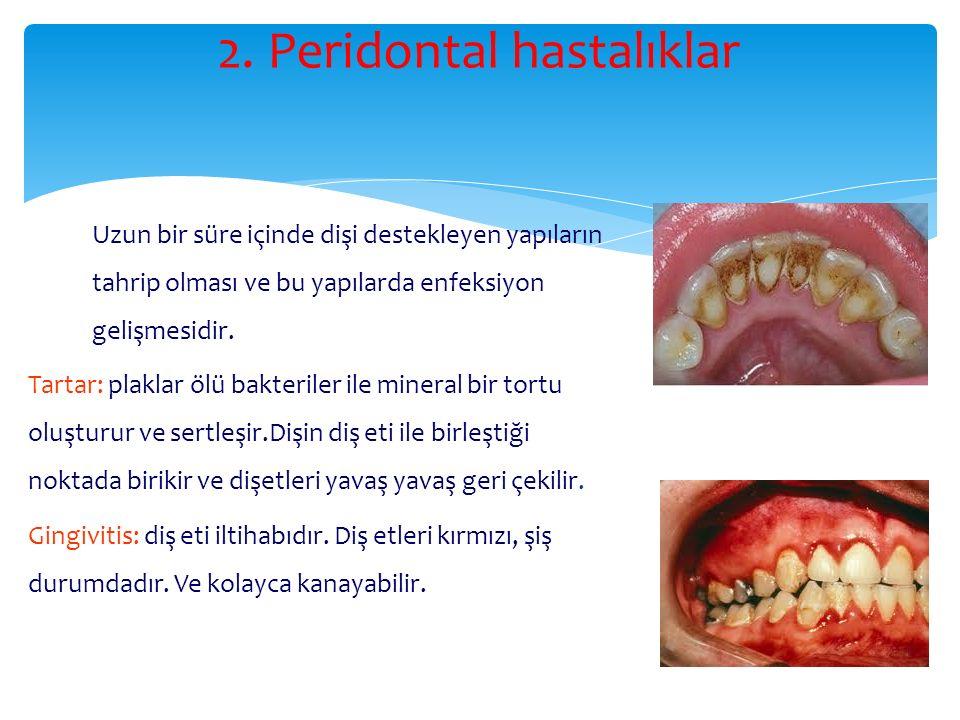 2. Peridontal hastalıklar Uzun bir süre içinde dişi destekleyen yapıların tahrip olması ve bu yapılarda enfeksiyon gelişmesidir. Tartar: plaklar ölü b