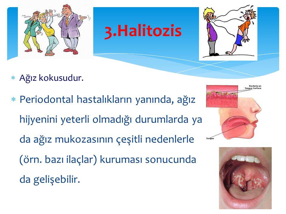 3.Halitozis  Ağız kokusudur.