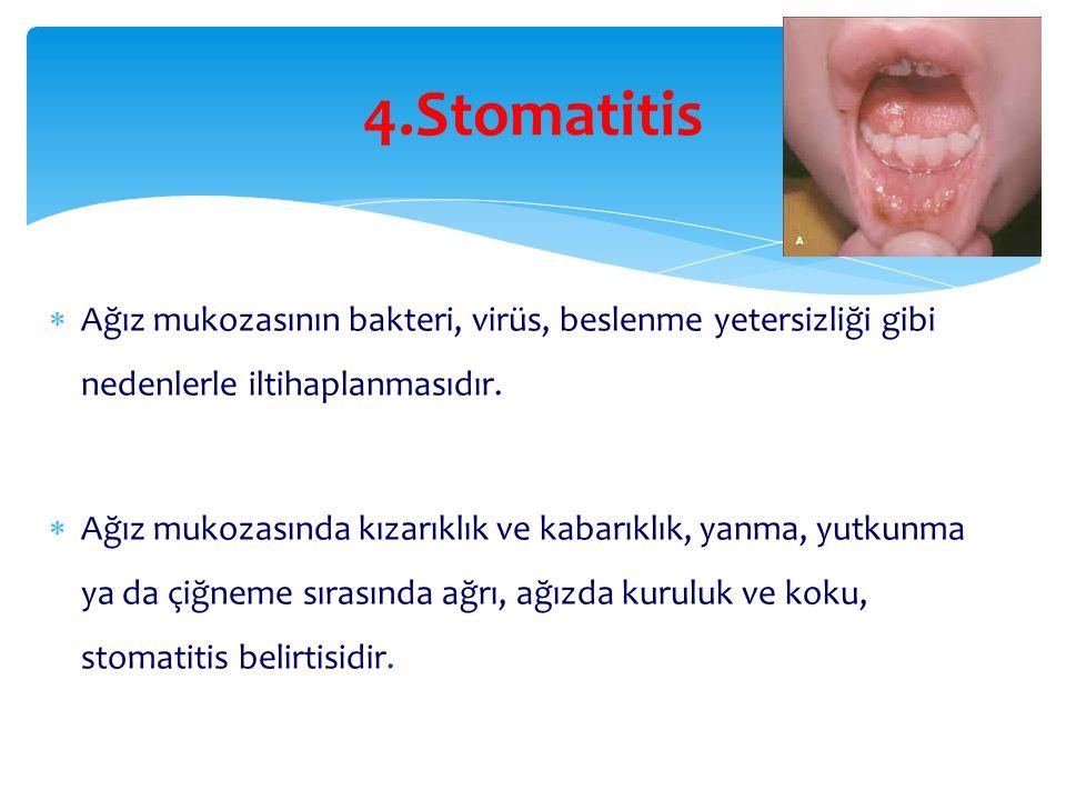 4.Stomatitis  Ağız mukozasının bakteri, virüs, beslenme yetersizliği gibi nedenlerle iltihaplanmasıdır.