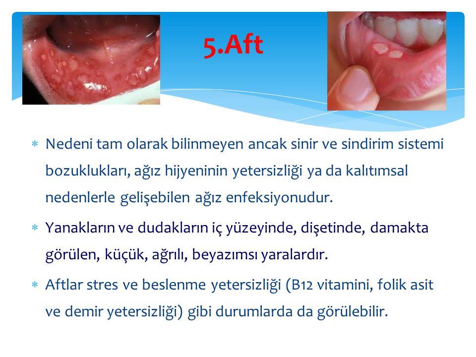 5.Aft  Nedeni tam olarak bilinmeyen ancak sinir ve sindirim sistemi bozuklukları, ağız hijyeninin yetersizliği ya da kalıtımsal nedenlerle gelişebilen ağız enfeksiyonudur.