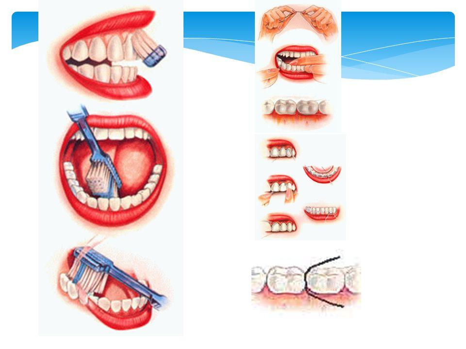Titreşimli (elektrikli) diş fırçala rı
