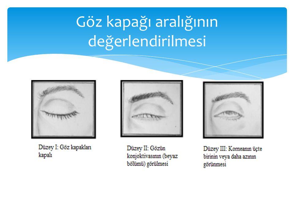 Göz kapağı aralığının değerlendirilmesi