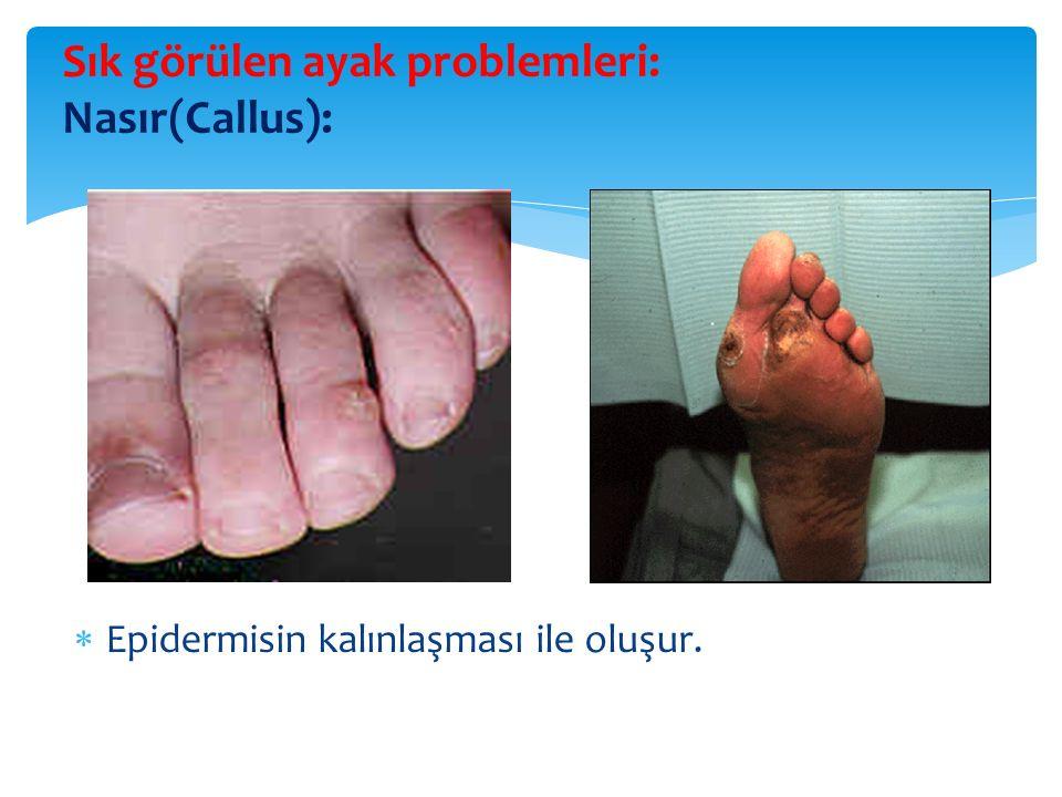 Sık görülen ayak problemleri: Nasır(Callus):  Epidermisin kalınlaşması ile oluşur.