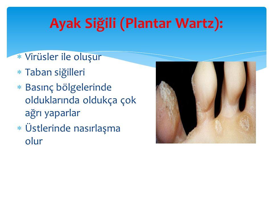 Ayak Siğili (Plantar Wartz):  Virüsler ile oluşur  Taban siğilleri  Basınç bölgelerinde olduklarında oldukça çok ağrı yaparlar  Üstlerinde nasırlaşma olur