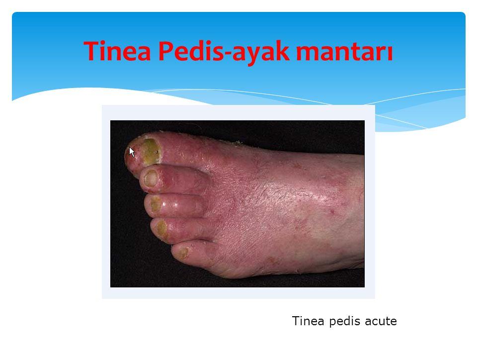 Tinea Pedis-ayak mantarı Tinea pedis acute