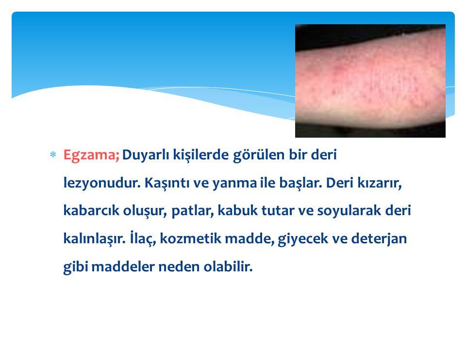  Egzama; Duyarlı kişilerde görülen bir deri lezyonudur.