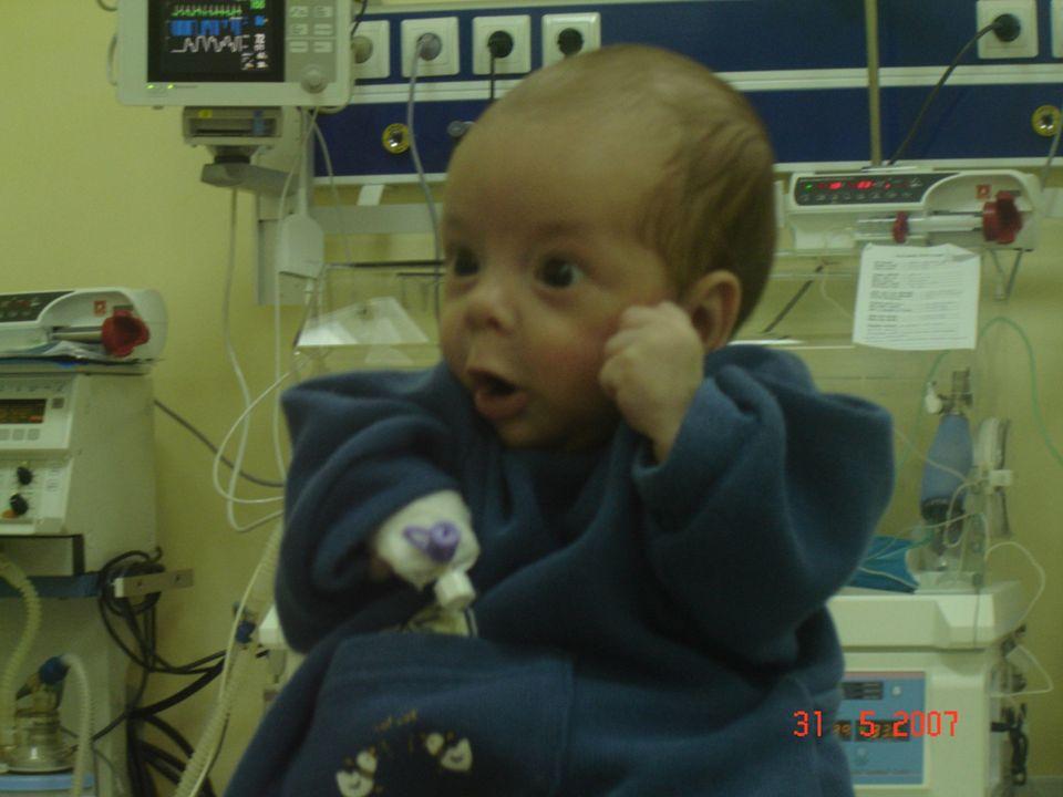 Erken başlangıçlı sepsis: Yaşamın ilk üç gününde ortaya çıkar.