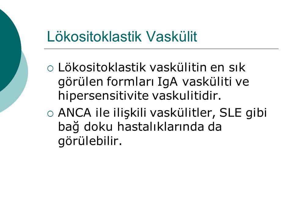 Lökositoklastik Vaskülit  Lökositoklastik vaskülitin en sık görülen formları IgA vasküliti ve hipersensitivite vaskulitidir.  ANCA ile ilişkili vask