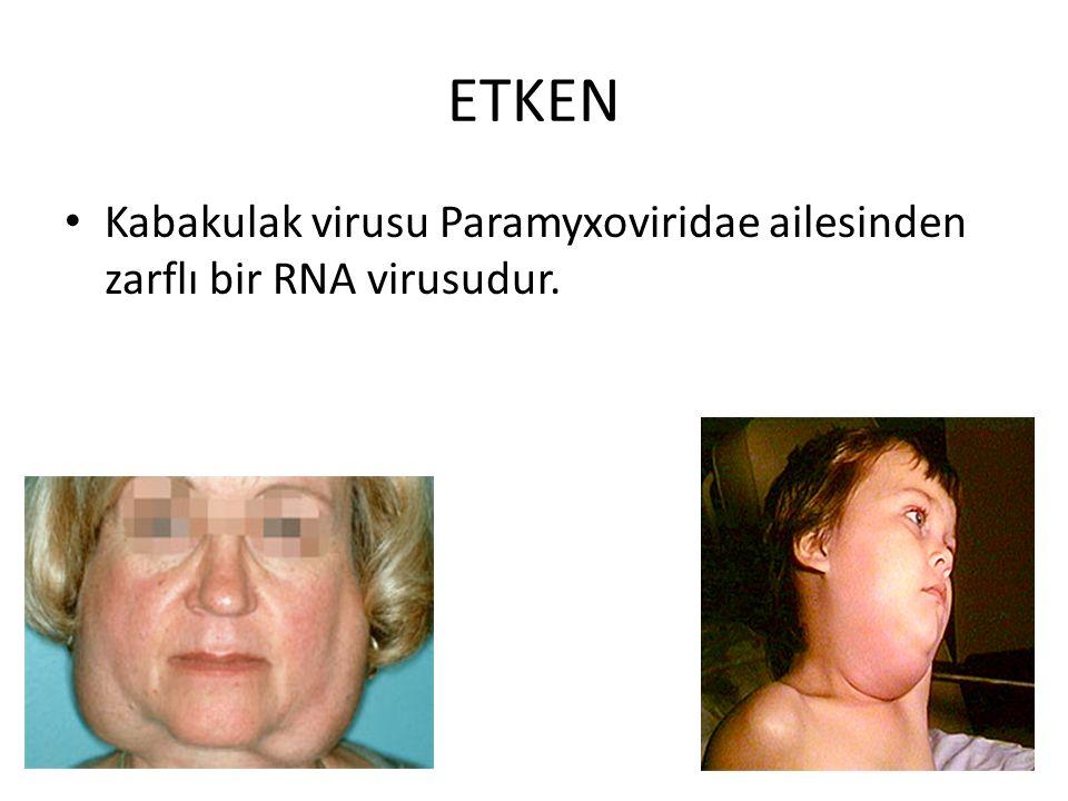 ETKEN Kabakulak virusu Paramyxoviridae ailesinden zarflı bir RNA virusudur.