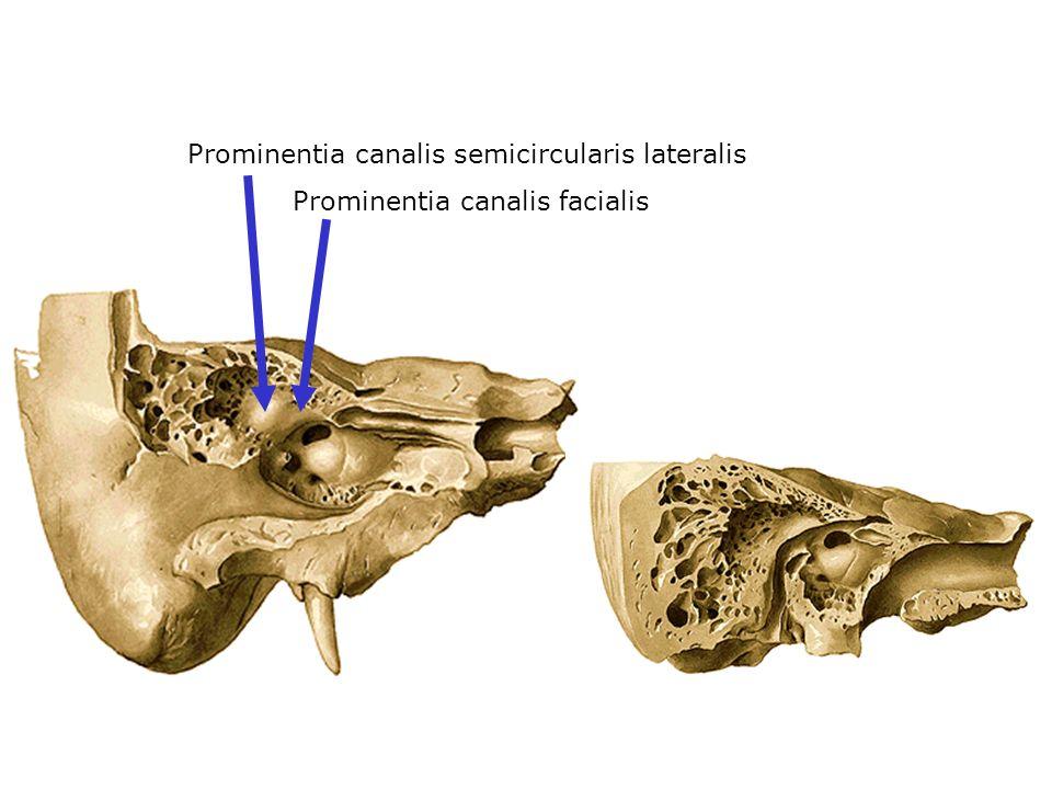 Prominentia canalis semicircularis lateralis Prominentia canalis facialis