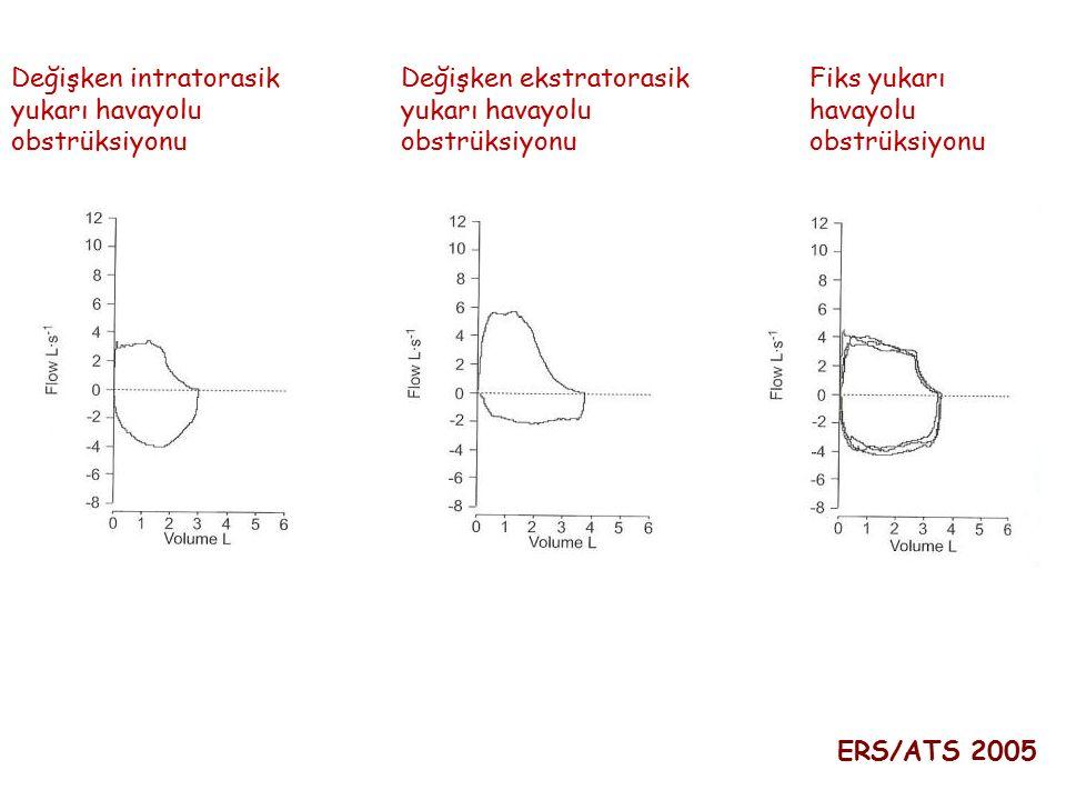 Değişken intratorasik yukarı havayolu obstrüksiyonu Değişken ekstratorasik yukarı havayolu obstrüksiyonu Fiks yukarı havayolu obstrüksiyonu ERS/ATS 20