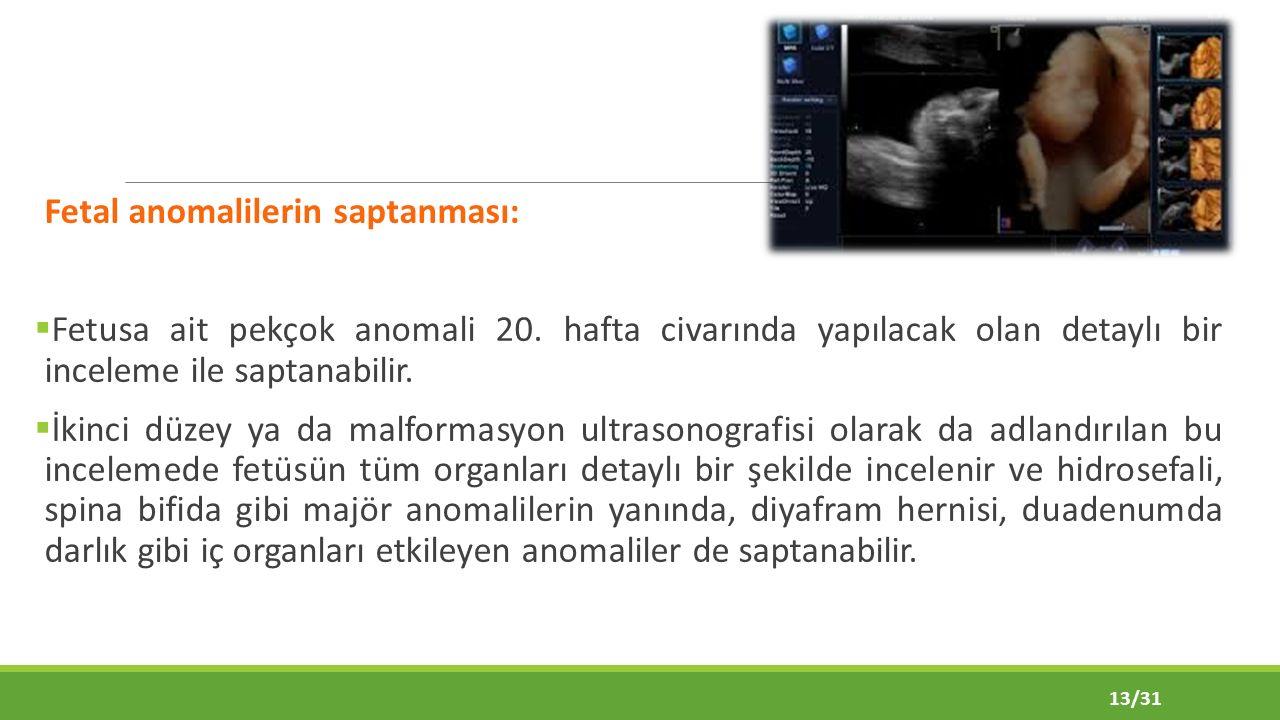 Fetal anomalilerin saptanması:  Fetusa ait pekçok anomali 20.