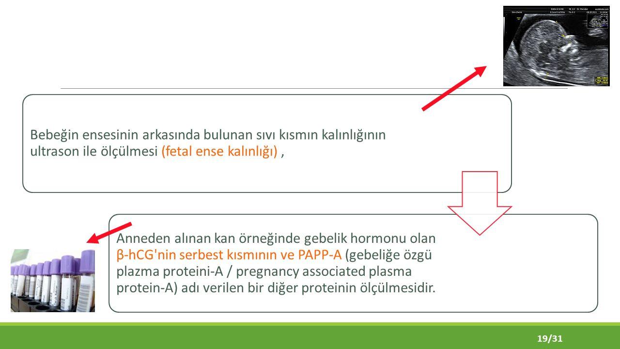 Bebeğin ensesinin arkasında bulunan sıvı kısmın kalınlığının ultrason ile ölçülmesi (fetal ense kalınlığı), Anneden alınan kan örneğinde gebelik hormonu olan β-hCG nin serbest kısmının ve PAPP-A (gebeliğe özgü plazma proteini-A / pregnancy associated plasma protein-A) adı verilen bir diğer proteinin ölçülmesidir.