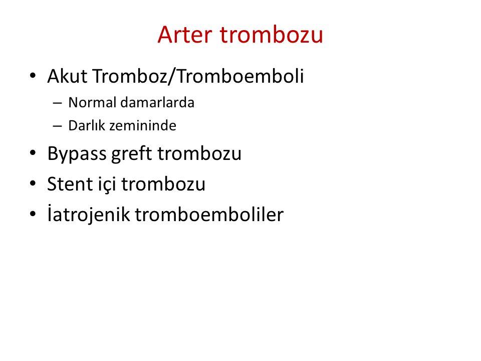 Arter trombozu Akut Tromboz/Tromboemboli – Normal damarlarda – Darlık zemininde Bypass greft trombozu Stent içi trombozu İatrojenik tromboemboliler
