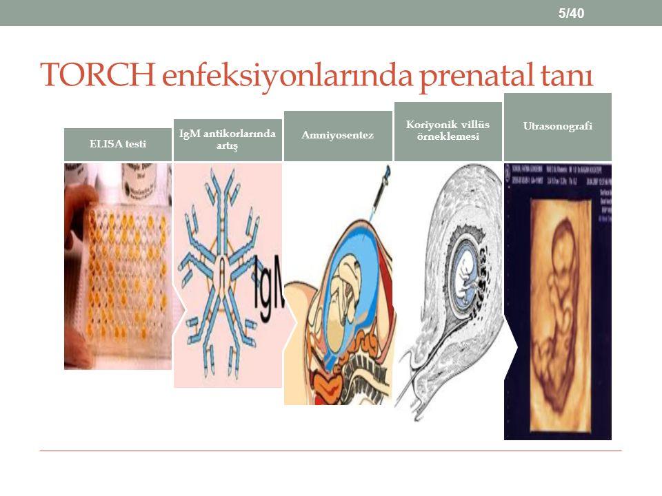 Annenin fetal bağışıklıktaki etkisi: Anneden fetüse IgG geçerek pasif bağışıklığı sağlar.